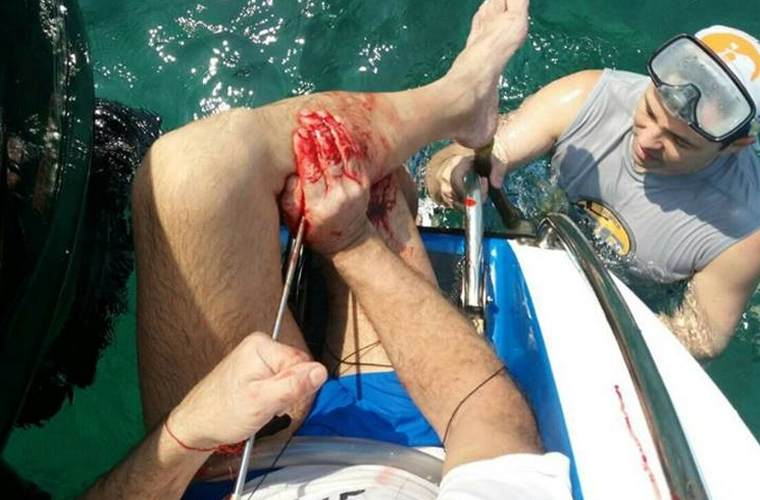 Россиянин в Паттайе сам себе прострелил ногу